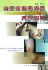 常见皮肤病问答与典型图例