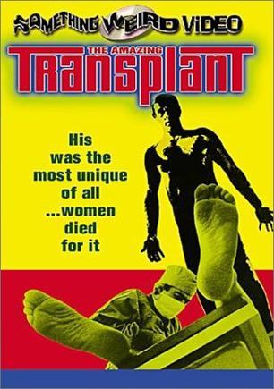The Amazing Transplant