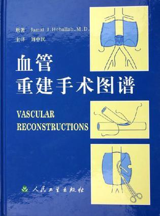 血管重建手术图谱