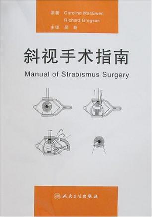 斜视手术指南