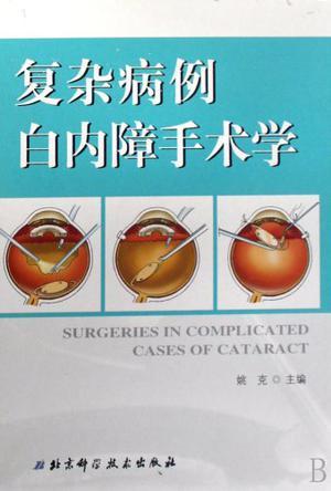 复杂病例白内障手术学